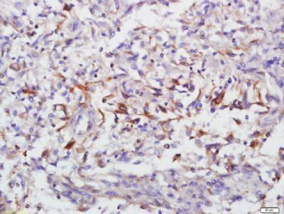 Immunohistochemical staining of human lung carcinoma tissue using Annexin V antibody.
