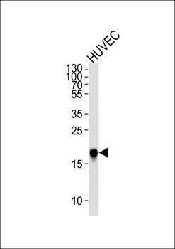 Western blot analysis of HUVEC cell lineusing CAV2 antibody (primary antibody dilution at: 1:1000)