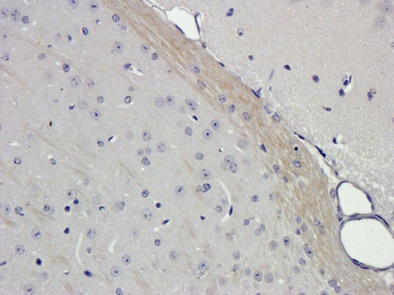Immunohistochemical staining of paraffin embedded mouse brain tissue using Filaggrin antibody (2.5 ug/ml)